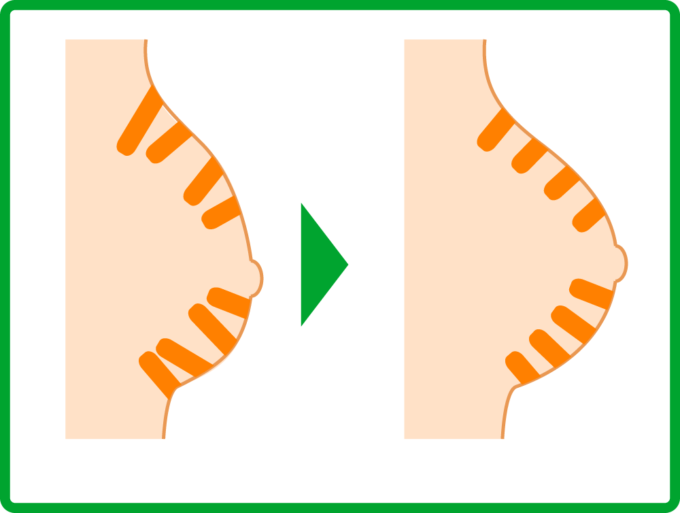 クーパー靭帯の正常化のイメージ