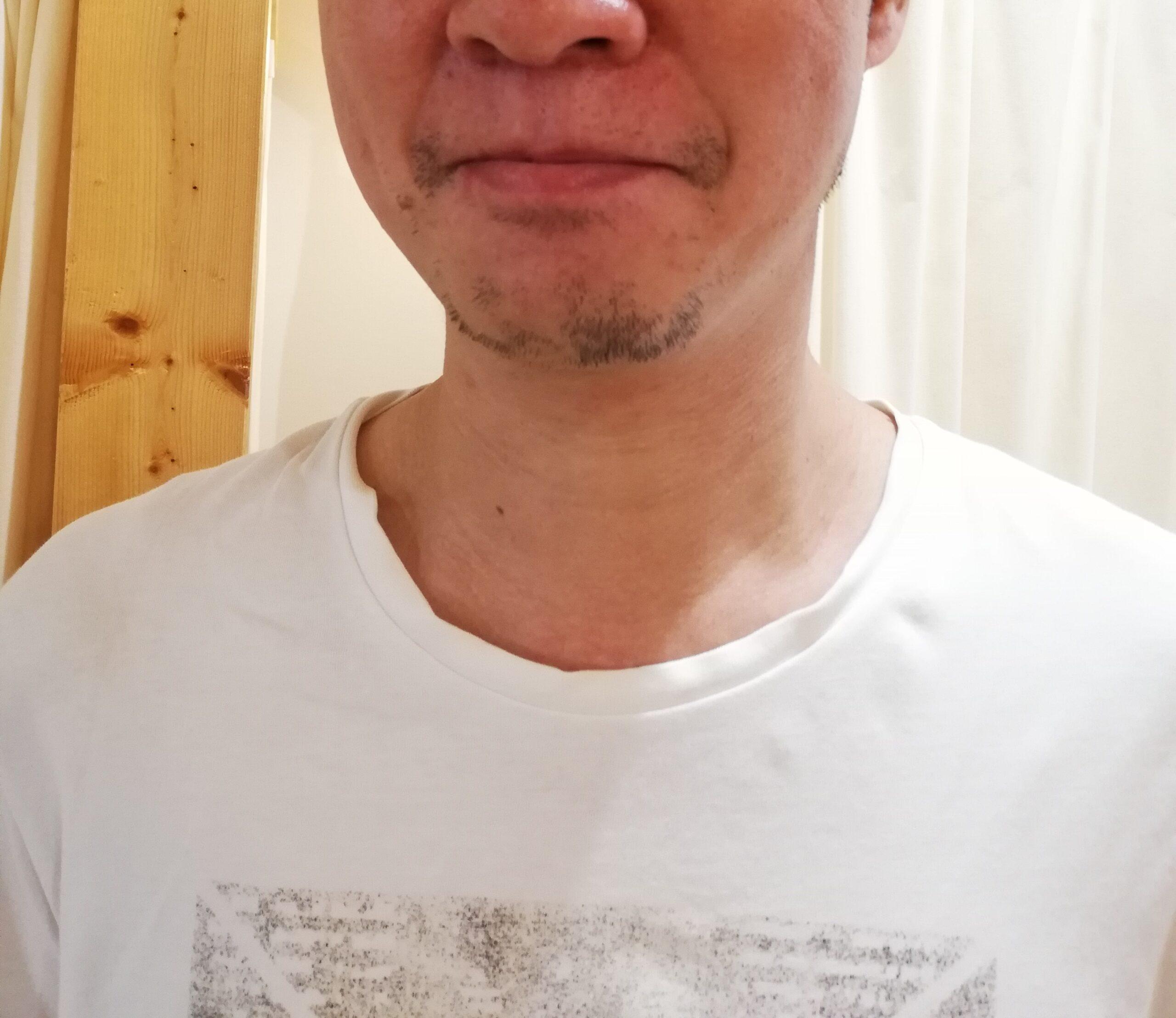 男性のひげ脱毛